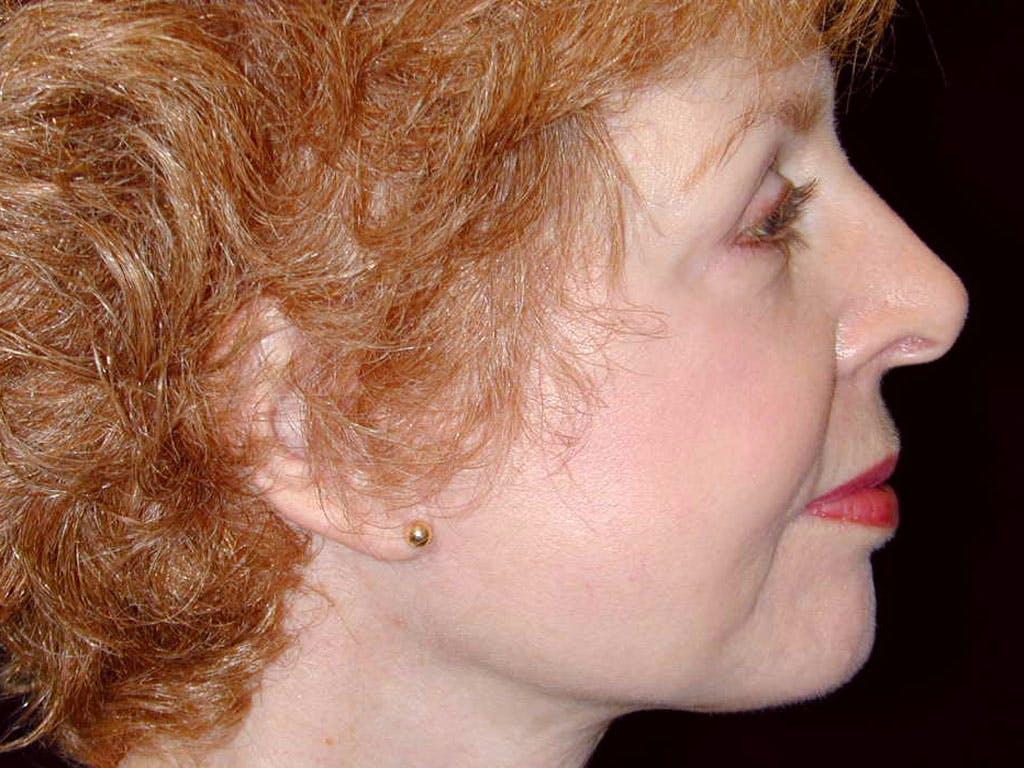 Facelift Gallery - Patient 39209084 - Image 4