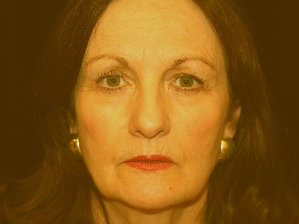 Facelift Gallery - Patient 39209097 - Image 1