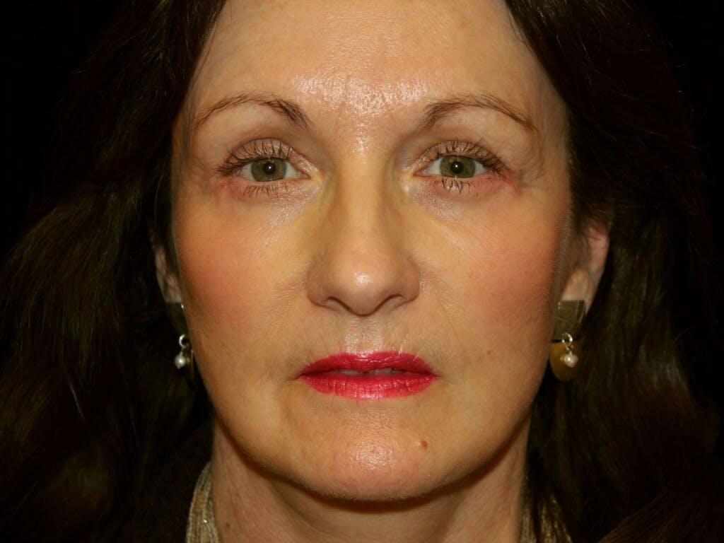 Facelift Gallery - Patient 39209097 - Image 2