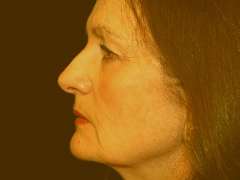 Facelift Gallery - Patient 39209097 - Image 9