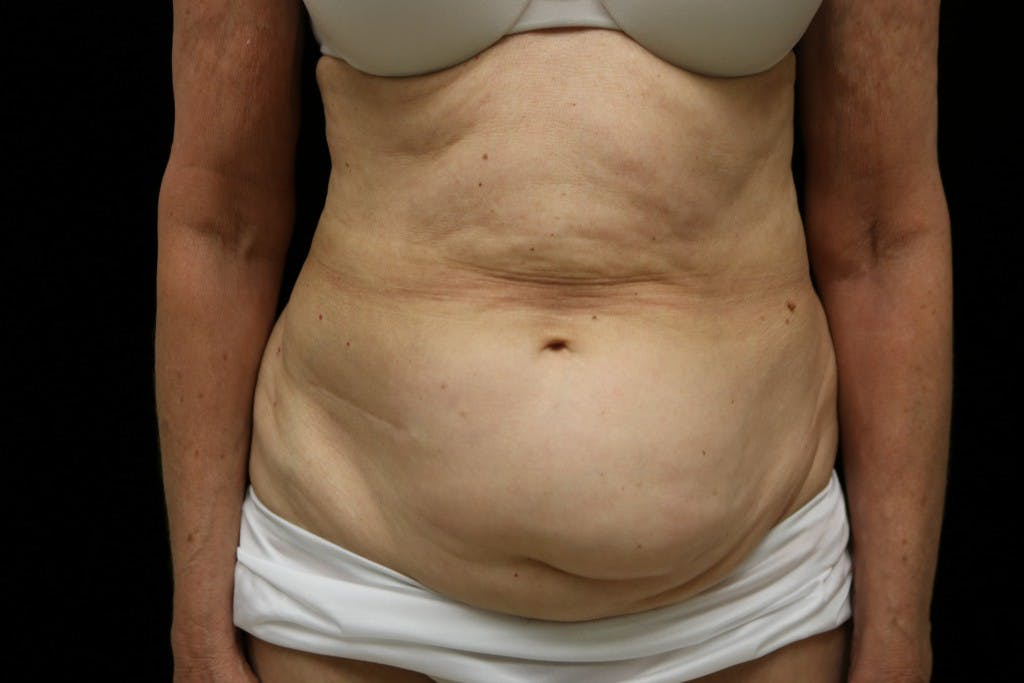 Tummy Tuck Gallery - Patient 39209100 - Image 1