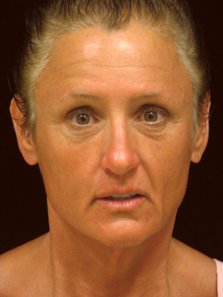 Facelift Gallery - Patient 39209105 - Image 1