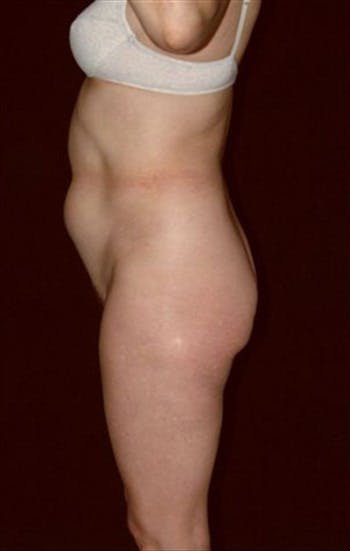 Liposuction Gallery - Patient 39209099 - Image 1