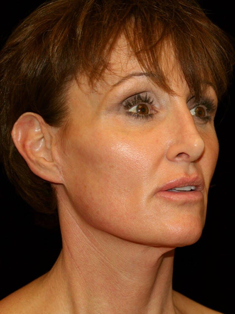 Facelift Gallery - Patient 39209105 - Image 4