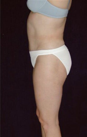 Liposuction Gallery - Patient 39209099 - Image 2