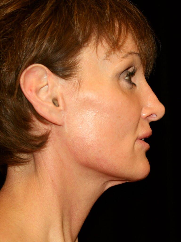 Facelift Gallery - Patient 39209105 - Image 6