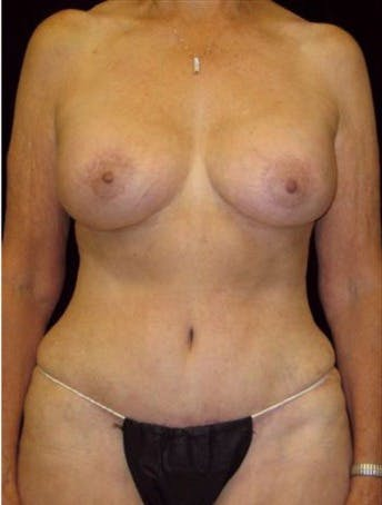 Mommy Makeover Gallery - Patient 39209101 - Image 2