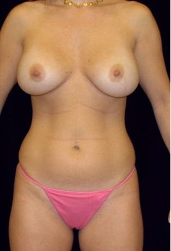 Liposuction Gallery - Patient 39209102 - Image 1