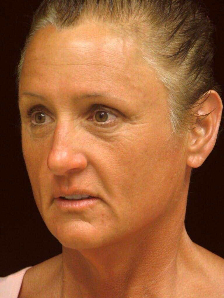 Facelift Gallery - Patient 39209105 - Image 7