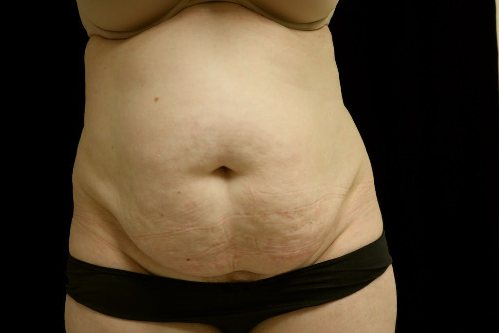 Tummy Tuck Gallery - Patient 39209110 - Image 1
