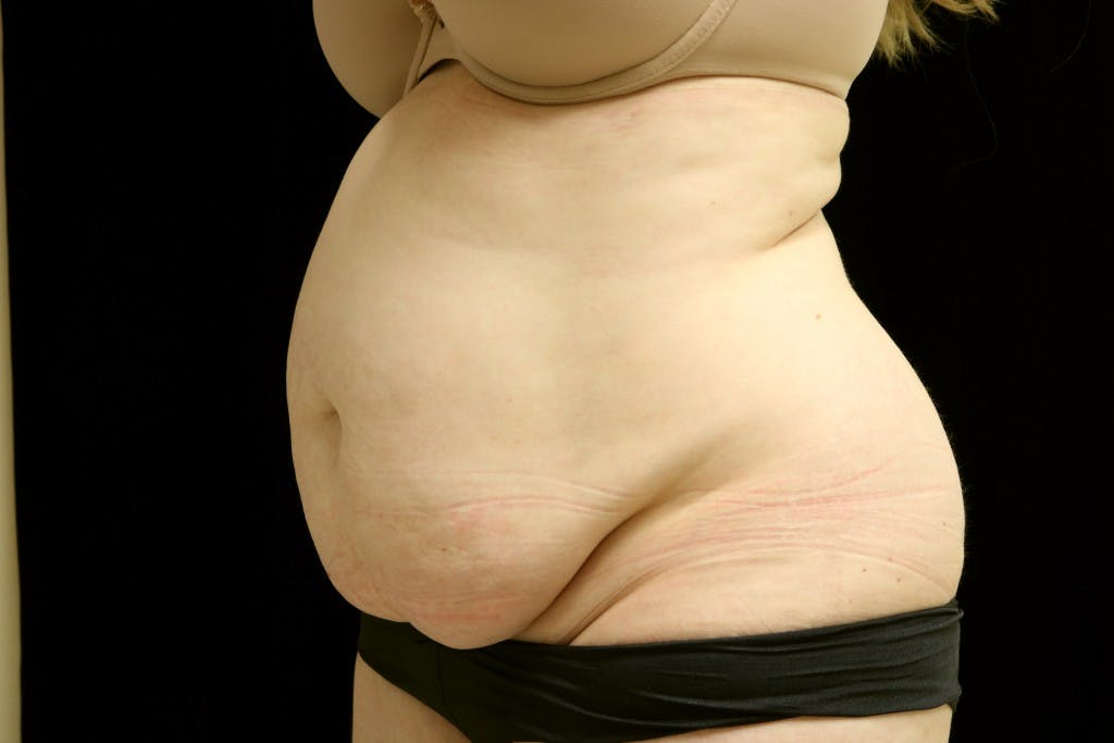 Tummy Tuck Gallery - Patient 39209110 - Image 3