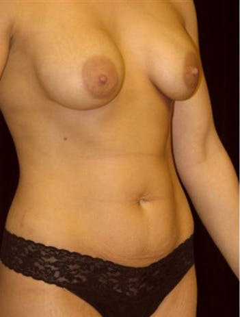 Mommy Makeover Gallery - Patient 39209104 - Image 1