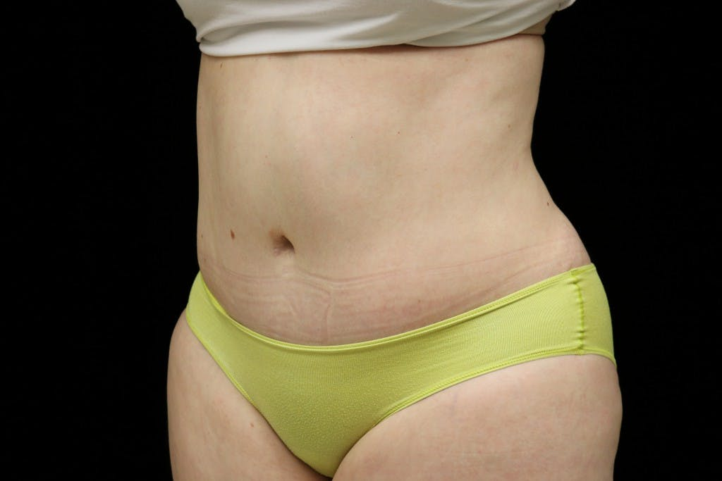Tummy Tuck Gallery - Patient 39209110 - Image 4