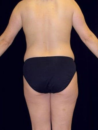Liposuction Gallery - Patient 39209108 - Image 1