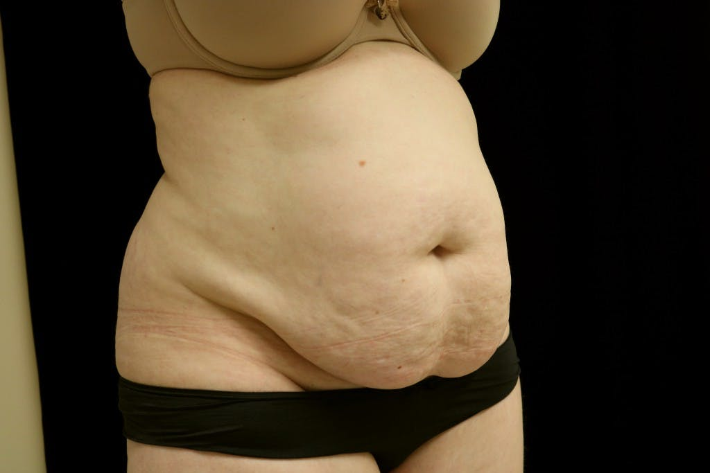 Tummy Tuck Gallery - Patient 39209110 - Image 5