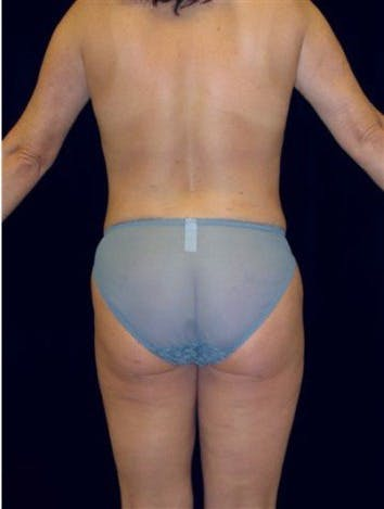 Liposuction Gallery - Patient 39209108 - Image 2