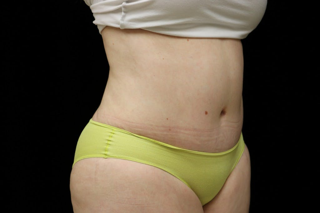 Tummy Tuck Gallery - Patient 39209110 - Image 6