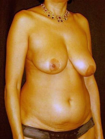 Mommy Makeover Gallery - Patient 39209111 - Image 1