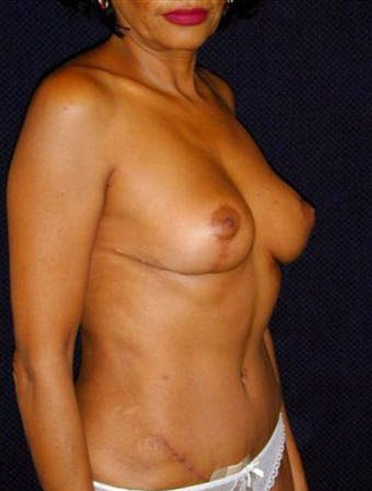 Mommy Makeover Gallery - Patient 39209111 - Image 2