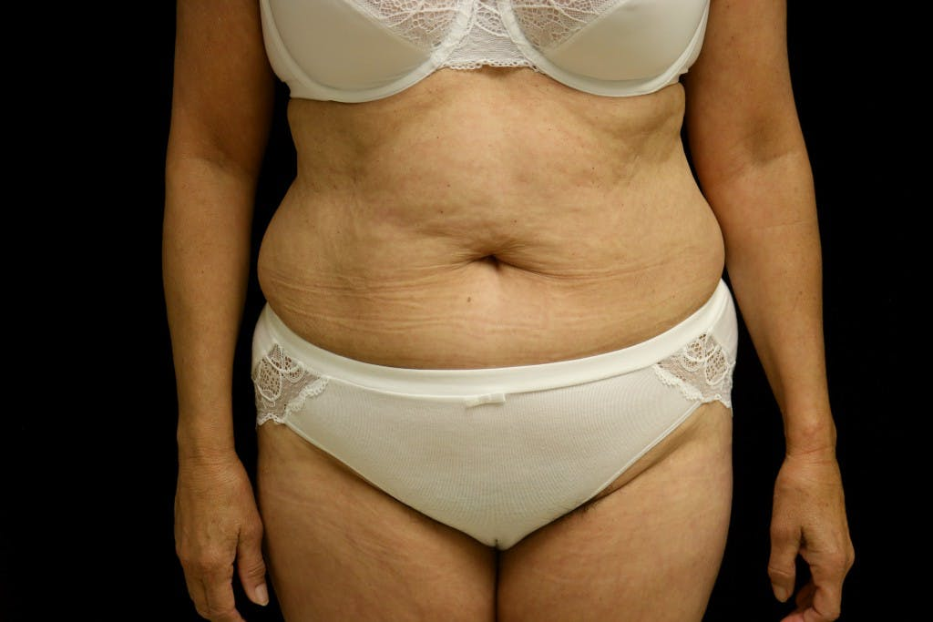Tummy Tuck Gallery - Patient 39209143 - Image 1