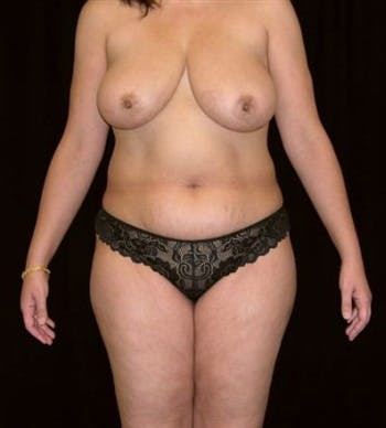 Mommy Makeover Gallery - Patient 39209137 - Image 1