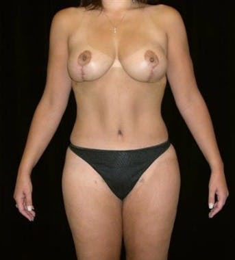 Mommy Makeover Gallery - Patient 39209137 - Image 2