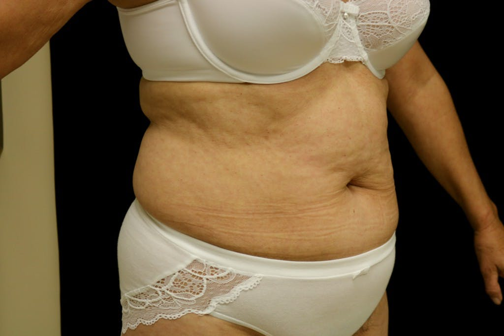 Tummy Tuck Gallery - Patient 39209143 - Image 3