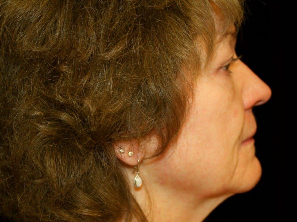 Facelift Gallery - Patient 39217570 - Image 3