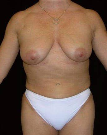 Liposuction Gallery - Patient 39209138 - Image 2