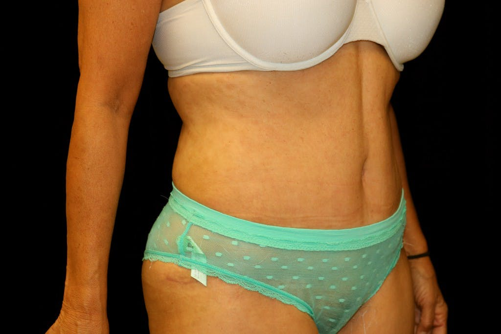 Tummy Tuck Gallery - Patient 39209143 - Image 4
