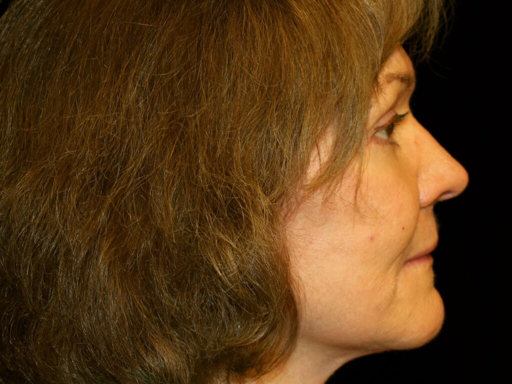 Facelift Gallery - Patient 39217570 - Image 4