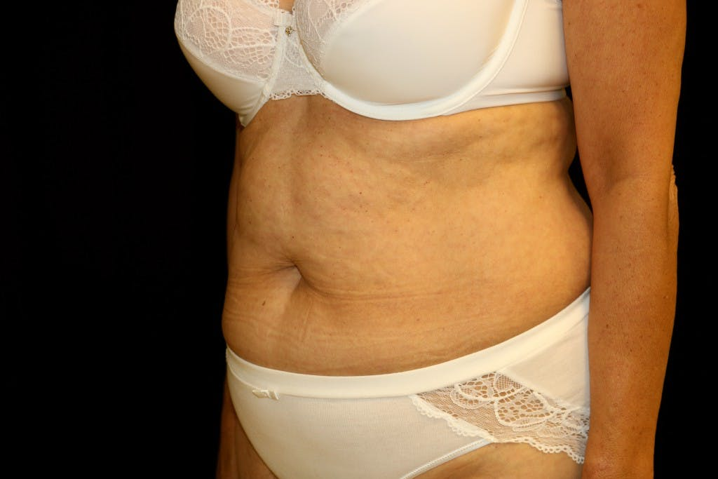 Tummy Tuck Gallery - Patient 39209143 - Image 5