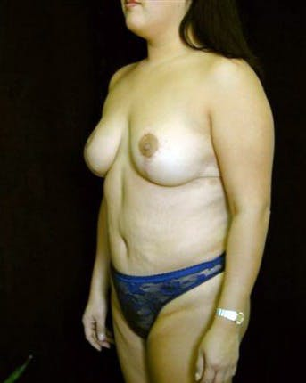 Mommy Makeover Gallery - Patient 39209141 - Image 2