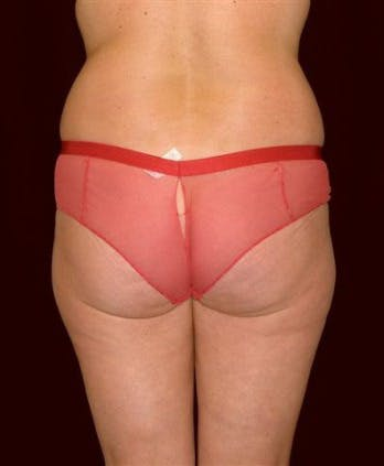 Liposuction Gallery - Patient 39209144 - Image 1