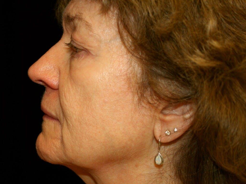 Facelift Gallery - Patient 39217570 - Image 7