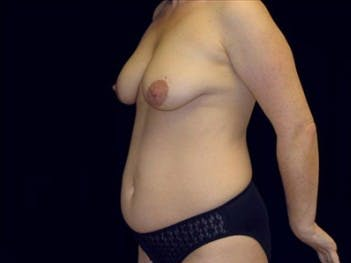 Mommy Makeover Gallery - Patient 39217569 - Image 1