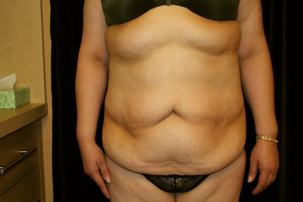 Tummy Tuck Gallery - Patient 39217580 - Image 1