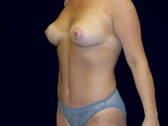 Mommy Makeover Gallery - Patient 39217569 - Image 2