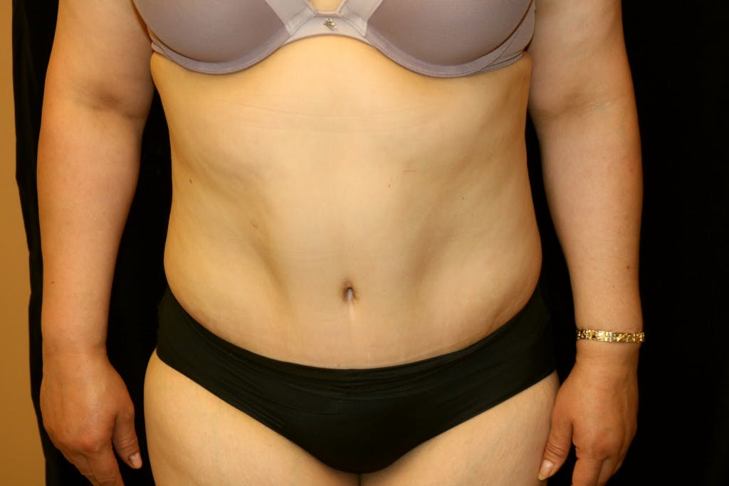 Tummy Tuck Gallery - Patient 39217580 - Image 2
