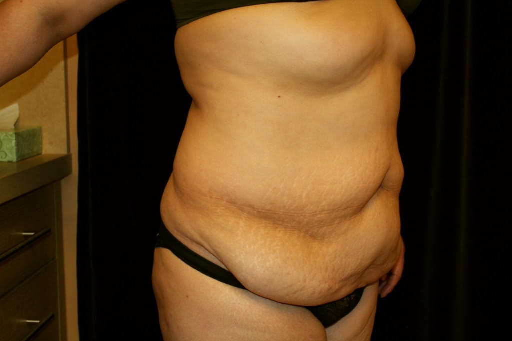 Tummy Tuck Gallery - Patient 39217580 - Image 3