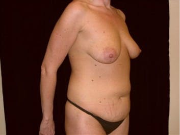 Mommy Makeover Gallery - Patient 39217577 - Image 1