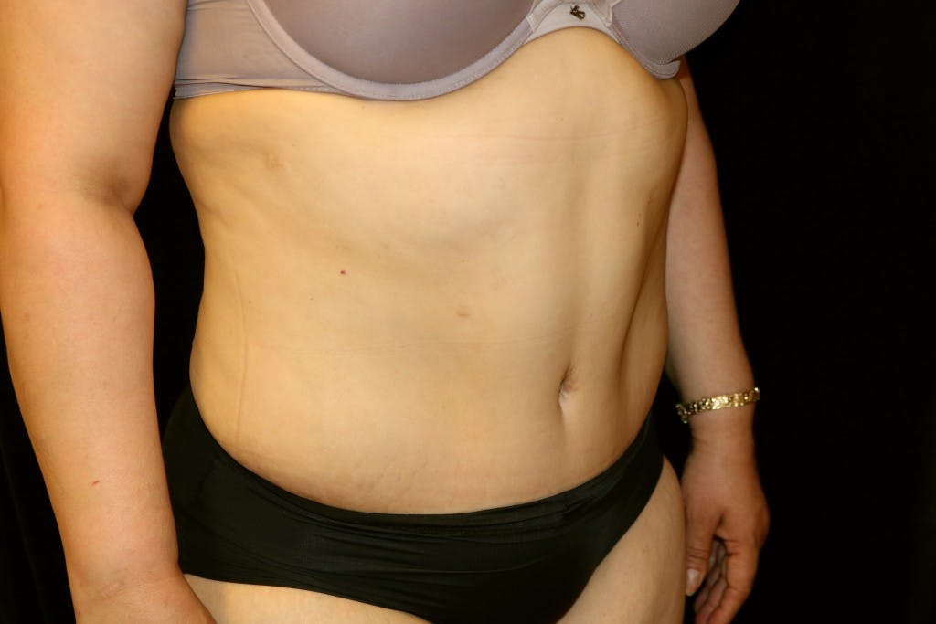 Tummy Tuck Gallery - Patient 39217580 - Image 4