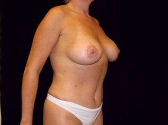 Mommy Makeover Gallery - Patient 39217577 - Image 2