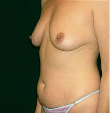 Liposuction Gallery - Patient 39217578 - Image 1