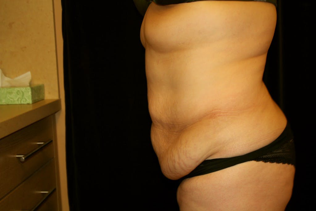 Tummy Tuck Gallery - Patient 39217580 - Image 5