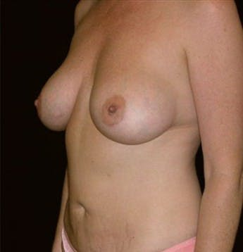 Liposuction Gallery - Patient 39217578 - Image 2
