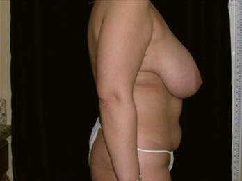 Mommy Makeover Gallery - Patient 39217581 - Image 1