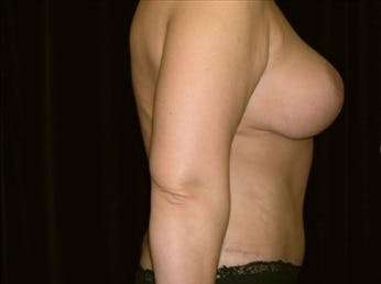 Mommy Makeover Gallery - Patient 39217581 - Image 2