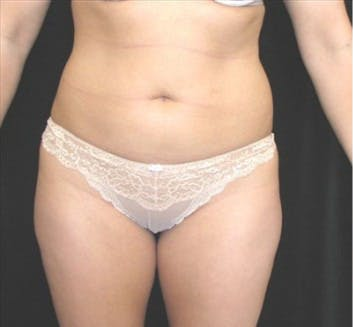 Liposuction Gallery - Patient 39217582 - Image 1