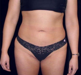 Liposuction Gallery - Patient 39217582 - Image 2